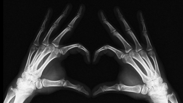 X-ray by Golan Levin (Flickr)