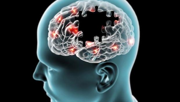 ep cerebro en la enfermedad de parkinson